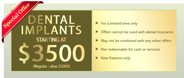 Dental Implants Starting at $3,500